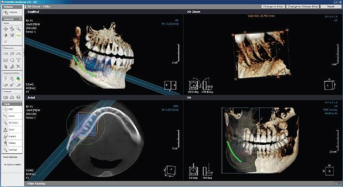 ¿Qué es el escáner Intraoral Tríos 3Shape y para qué se utiliza?