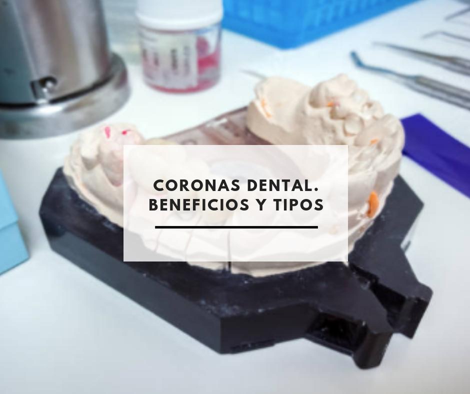 Coronas Dentales. Tipos y beneficios