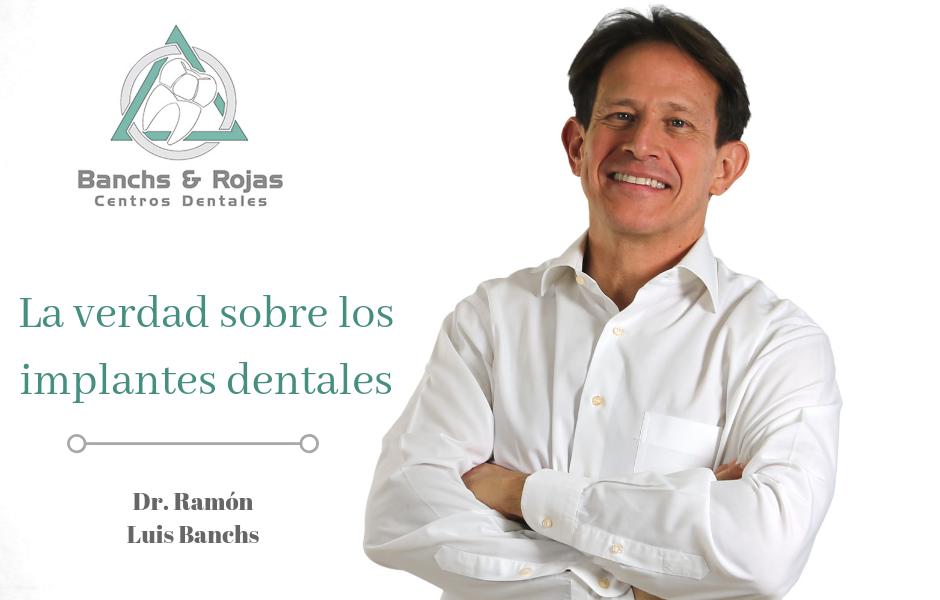 La verdad sobre los implantes dentales