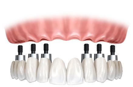 Cómo cuidar los implantes dentales adecuadamente
