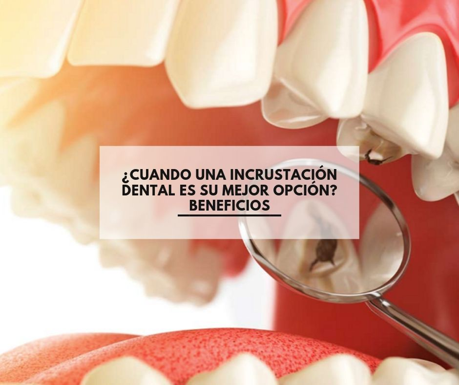 ¿Cuando una incrustación dental es su mejor opción? Beneficios
