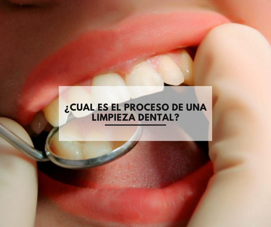 ¿Cual es el proceso de una limpieza dental?